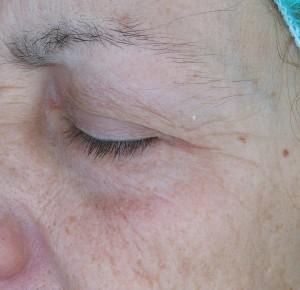 Valens Beauty kolagen Q10 gubice